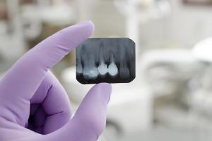 Dental x-ray with dental implants