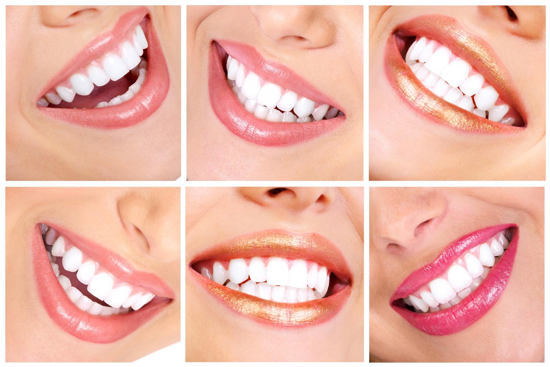 10 rád, ako si čistiť zuby a mať ich úplne zdravé a silné. Pomôž svojmu zdraviu!