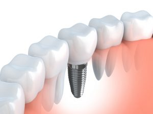 Find modern tooth replacement options with Norman dentist, Dr. Bobby Carmen. Are bridgework or dental implants right for you?