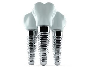 Image of 3 dental implants